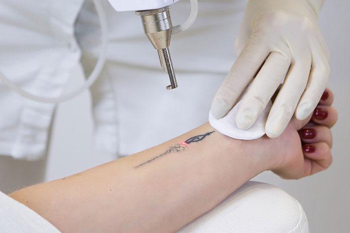 Trwałe usuwanie tatuażu